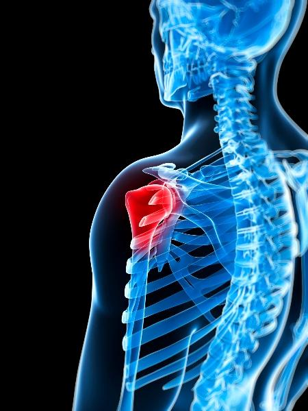 inflammation i axeln symptom
