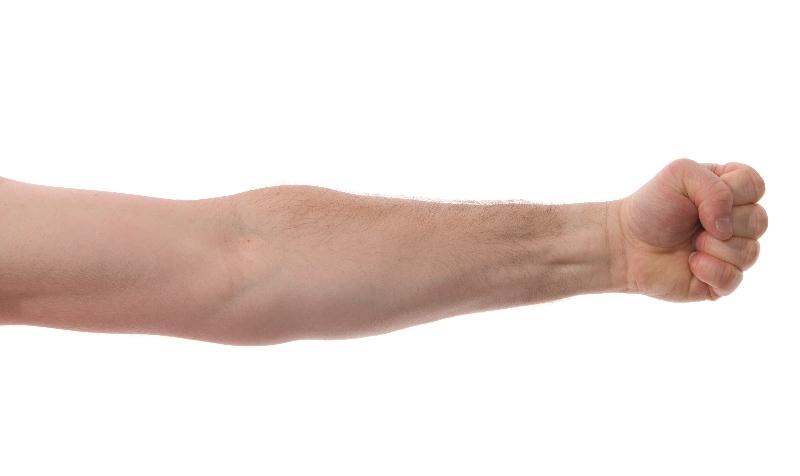 smärta i armarna
